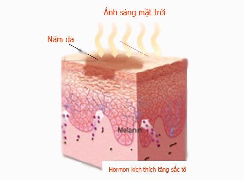 Cách trị nám da mặt hiệu quả tận gốc -triệt nám từ bên trong không lo tái phát 7