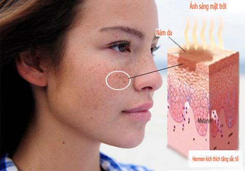 Cách trị nám da mặt hiệu quả tận gốc -triệt nám từ bên trong không lo tái phát 8