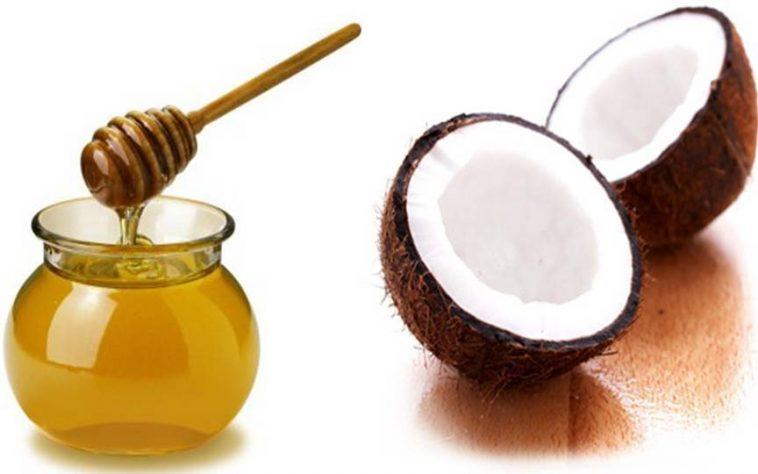 Bất ngờ với cách trị tàn nhang bằng dầu dừa 2