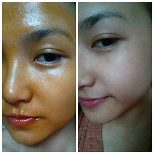 dầu gấc trị nám da mặt
