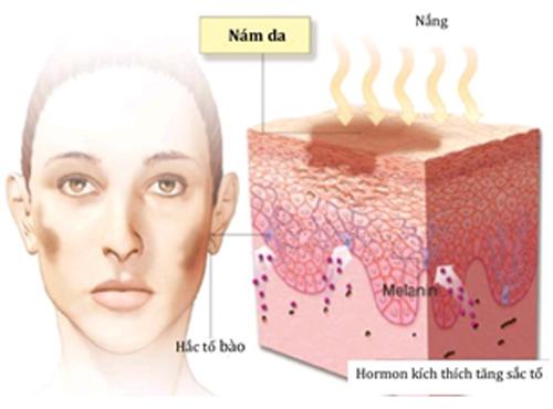 Nám da là gì? Những lý do khiến bạn bị nám da mặt 1