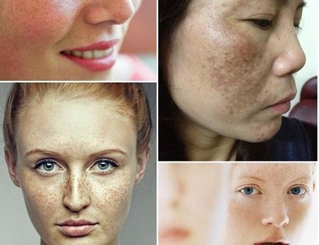 Nám da là gì? Những lý do khiến bạn bị nám da mặt 2