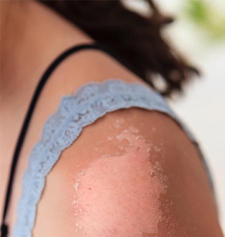 Cách chữa da bị cháy nắng và phục hồi làn da sạm nhanh nhất 5