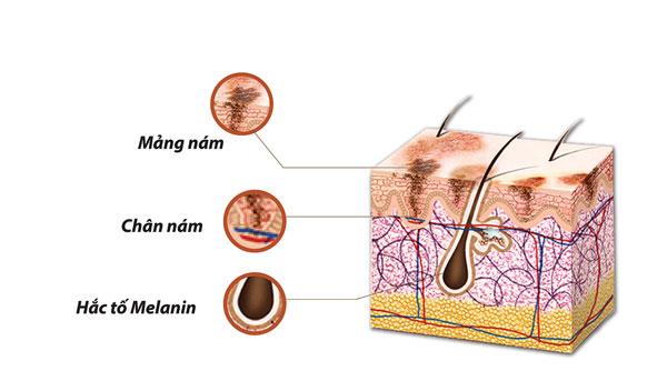 """Kết quả hình ảnh cho melamin trong da"""""""