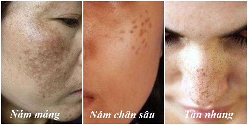 mặt nổi đốm màu nâu có thể bị nám hoặc tàn nhang