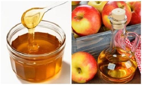 Trị tàn nhang ở gò má bằng giấm táo và mật ong
