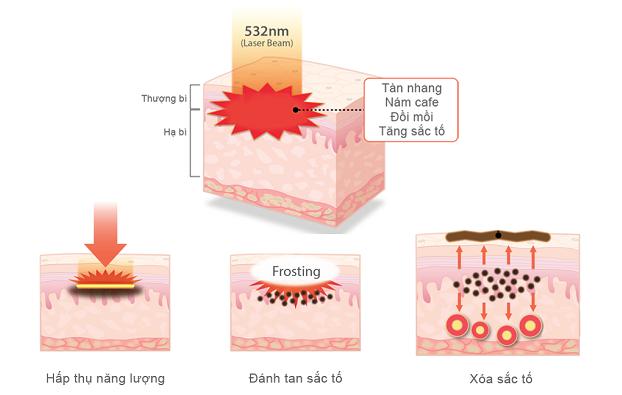 cơ chế trị nám bằng công nghệ Laser Yag