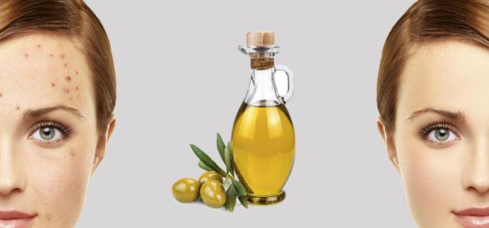 dầu oliu có trị mụn được không